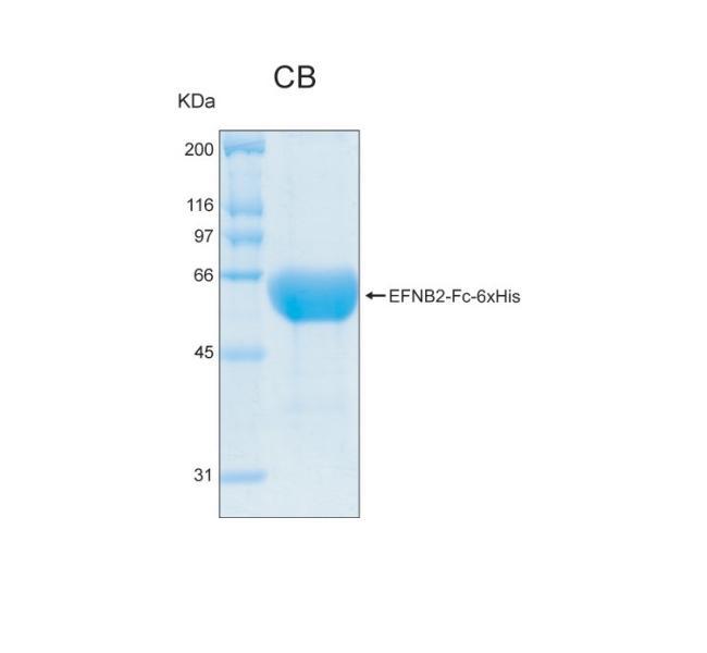 Human EFNB2 (Ephrin-B2), Fc and 6xHis