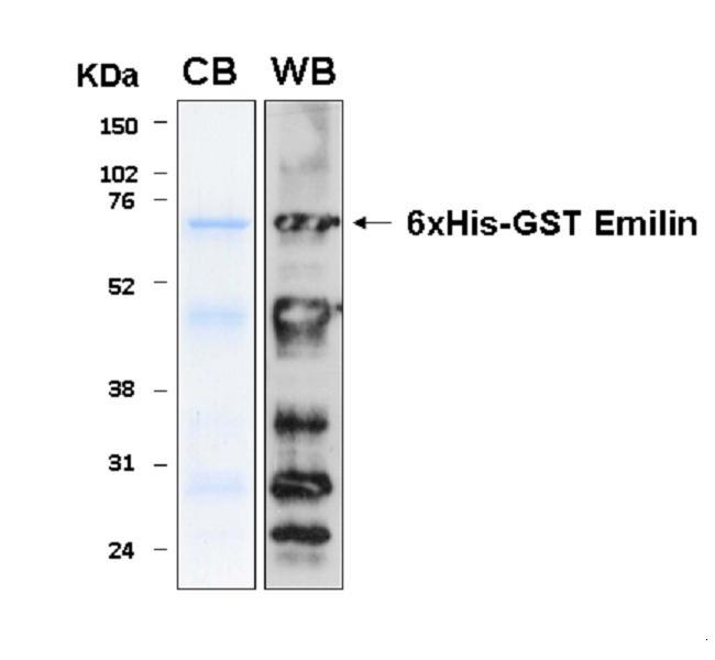 Human EMILIN1 (Emilin 1), 6xHis-GST tagged
