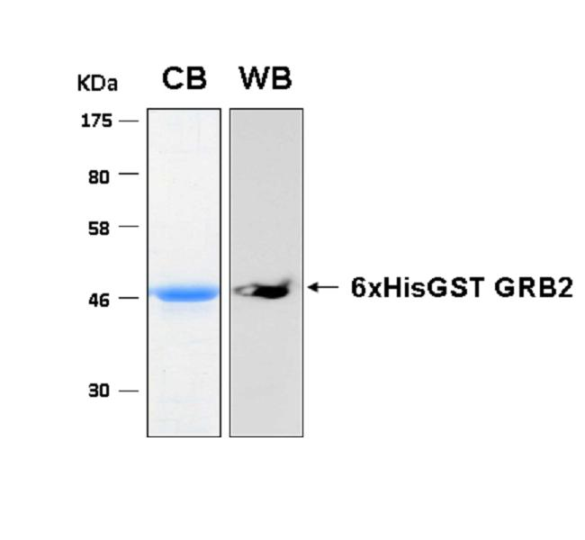 Human GRB2 (Growth Factor Receptor-Bound Protein 2), 6xHis-GST tags