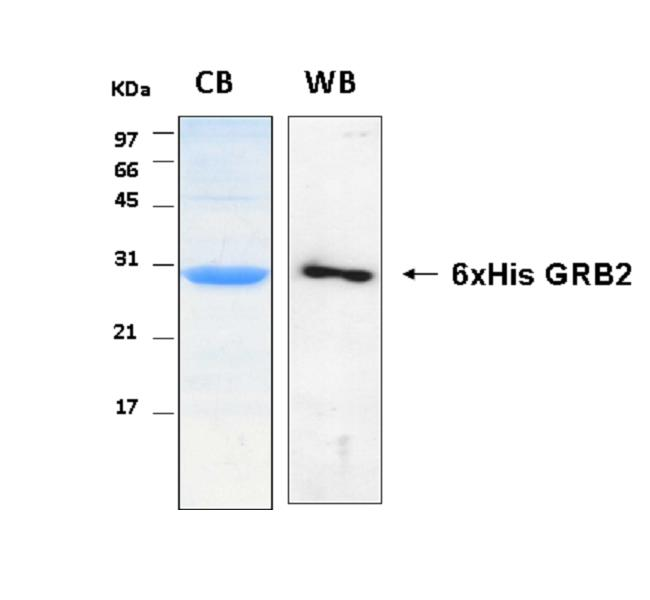 Human GRB2 (Growth Factor Receptor-Bound Protein 2), 6xHis tag