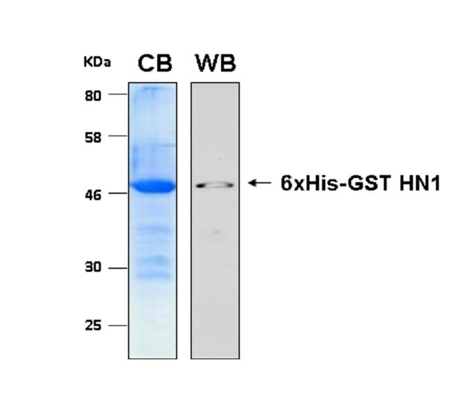 Human HN1 (Hematological and Neurological Expressed 1 Protein), 6xHis-GST tagged