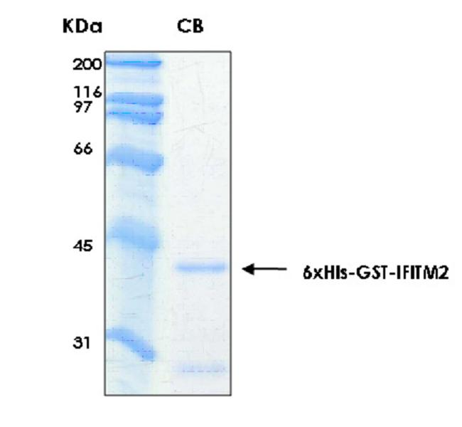 Human IFITM2 (Interferon-induced Transmembrane Protein 2), 6xHis-GST tags