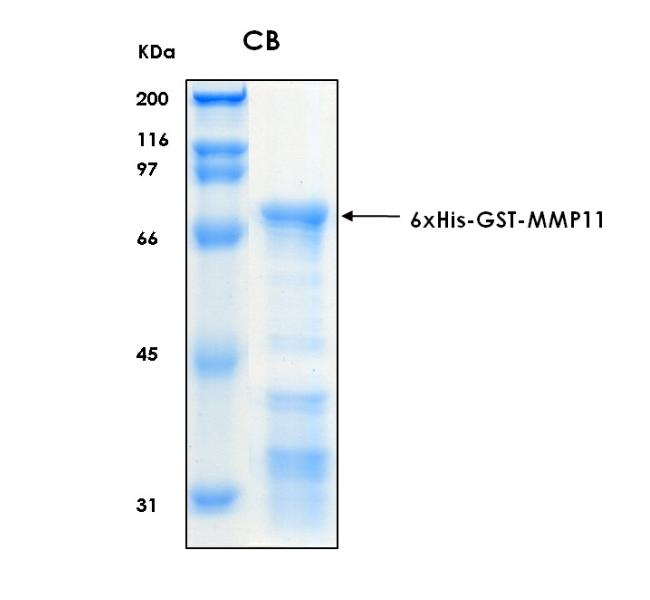 Human MMP11 (Stromelysin-3), 6xHis-GST tags