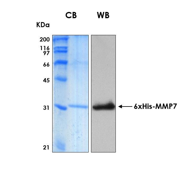 Human MMP7 (Matrilysin), 6xHis tag