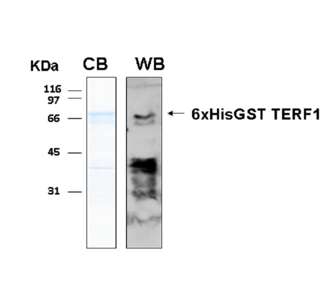 Human TERF1 (Telomeric Repeat-Binding Factor 1), 6xHis-GST tags