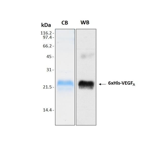 Human VEGF A (Vascular Endothelial Growth Factor A) from E. coli, 6xHis tag